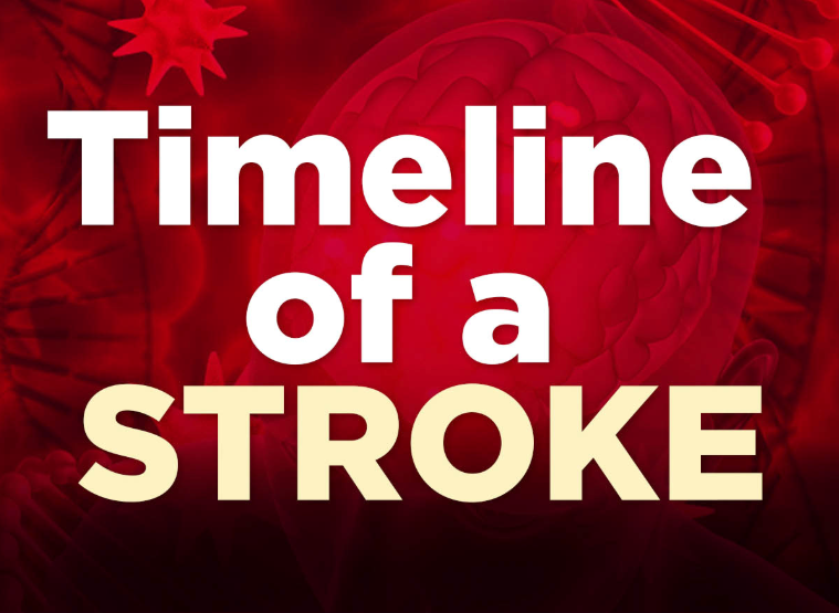 INFOGRAPHIC: Timeline of a Stroke